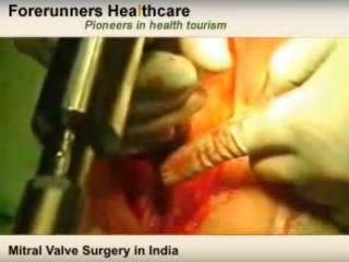 Операция протезирования митрального клапана сердца (www.youtube.com)